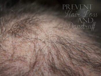 Prevent Hair Loss and Dandruff