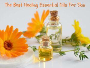 best healing essential oils